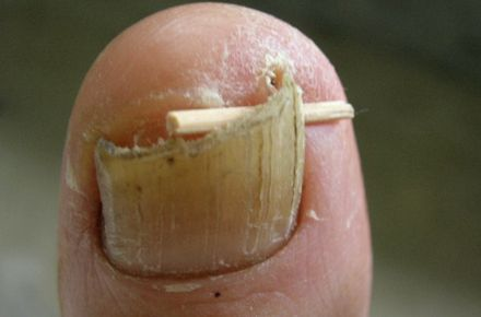This Dry Brittle Toenail Was Beginning To Grow Into Surrounding Flesh The Nail