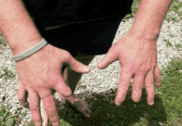 Kentucky Reptile Zoo director Jim Harrison doesn't much like to talk about his hands because he says they call attention to 'mistakes' he's made while extracting snake venom. (Photo by Jane Auge)