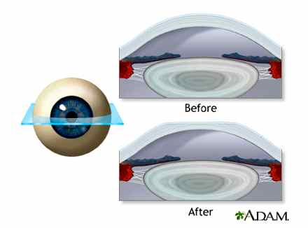 LASIK surgery involves a tiny laser cut of the cornea to create a flap that is then repositioned changing the curvature of the eye which is causing the nearsightedness. In the top image the cornea before LASIK is rounded which distorts the image the eye sees. In the bottom image, the corneal flap is flattened so there is less distortion of image. (Photo from U.S. National Library of Medicine)
