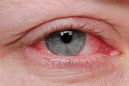 Irritation occurs when the eye comes in contact with pollen, dander, smog and mold (Photo Provided)